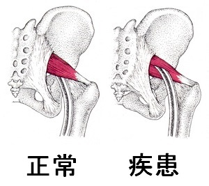 坐骨神経と梨状筋の関係2.jpg